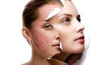 traitement-acne